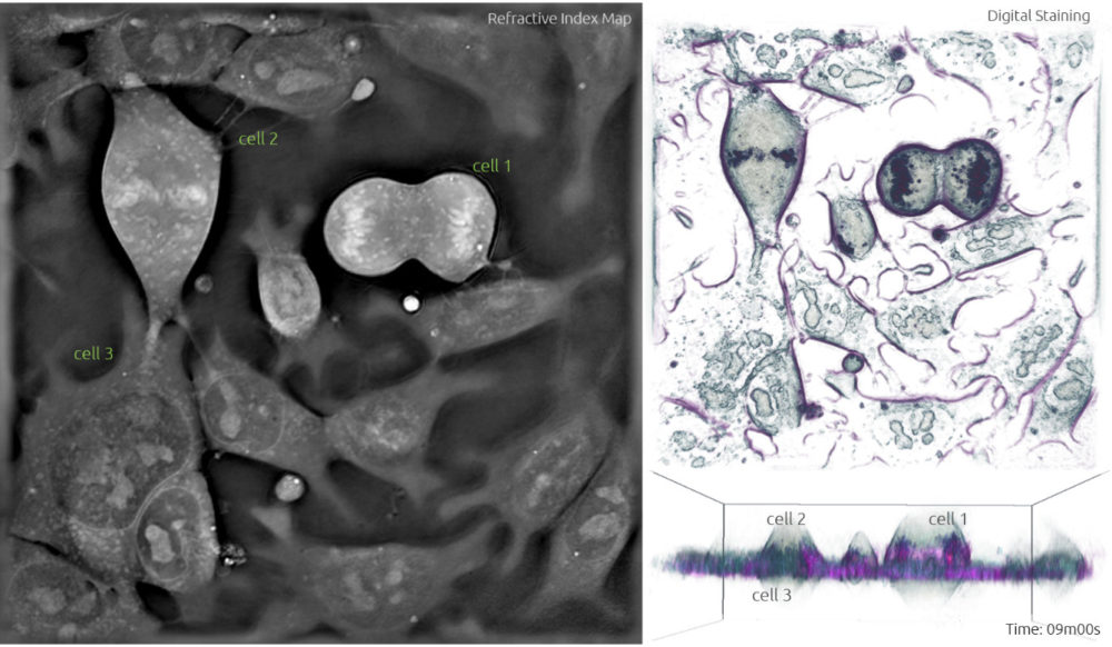 Stem Cells undergoing mitosis - label-free live cell imaging